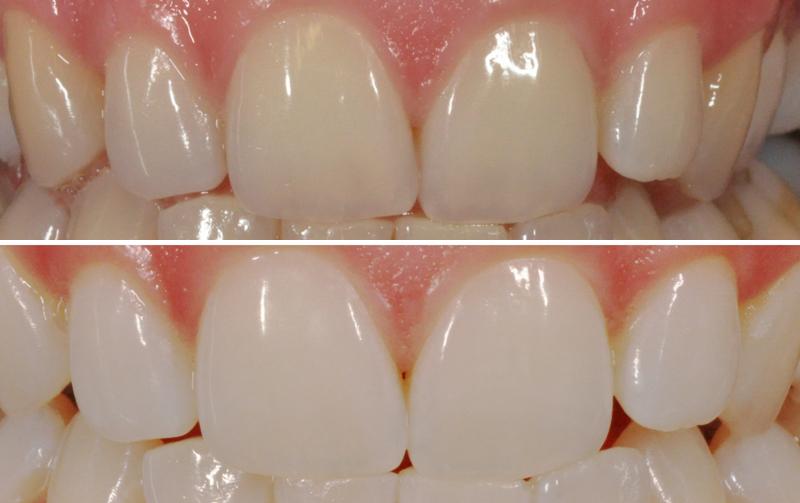 Beljenje zob